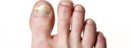 nail-fungus